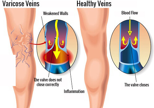 Carrot Juice Heals Spider Veins